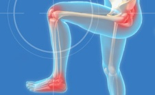 Learn how to stop the pain-chain that runs from your foot to your knee to your hip.