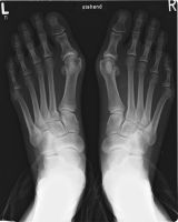 Bunions are primarily caused by faulty mechanics in your big toe