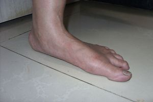 Flat feet can lead to ankle and knee issues