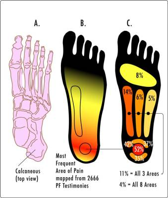 Plantar Fasciitis: Common Pain Areas