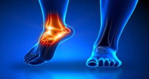 Your feet are your foundation - foot pain throws off all movement patterns